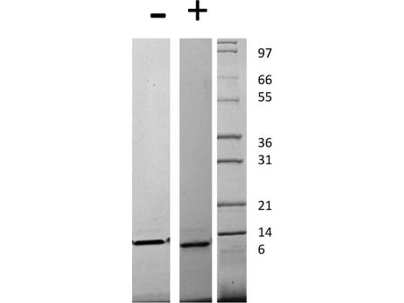 Image no. 1 for Chemokine (C-C Motif) Ligand 13 (CCL13) protein (ABIN6699598)