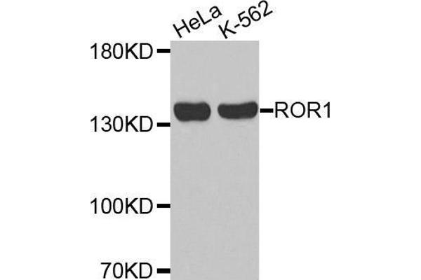 Western blot analysis of extracts of various cell lines, using ROR1 antibody.