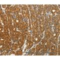 Immunohistochemistry of Human thyroid cancer using PTCH1 Polyclonal Antibody at dilution of 1:50