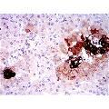 anti-Somatostatin Antikörper (SST)