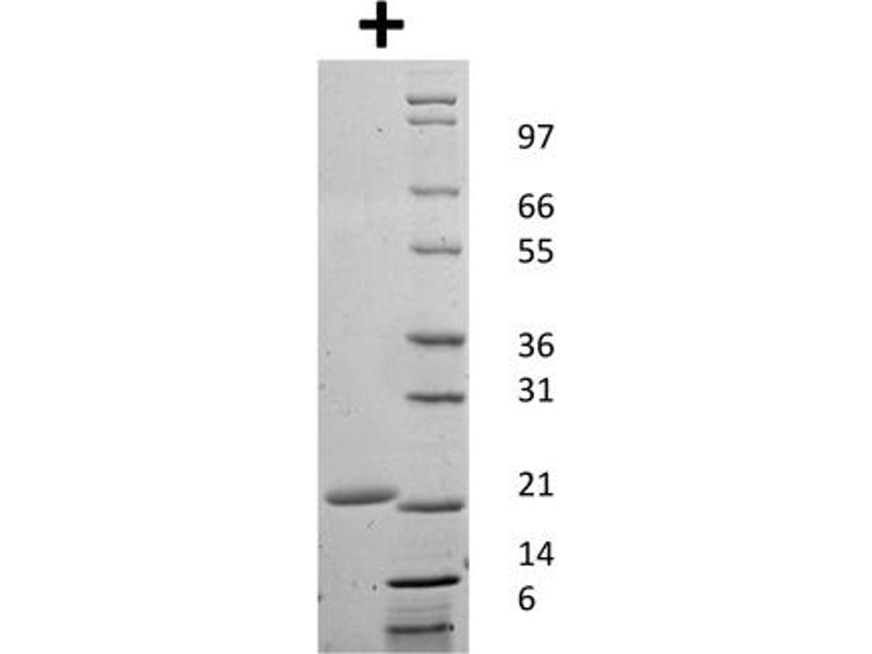 Image no. 1 for Colony Stimulating Factor 3 (Granulocyte) (CSF3) protein (ABIN6699721)