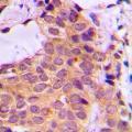 anti-PKC zeta 抗体 (Protein Kinase C, zeta) (C-Term)