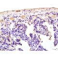 anti-s100b Antikörper (S100 Calcium Binding Protein B) (AA 20-65)