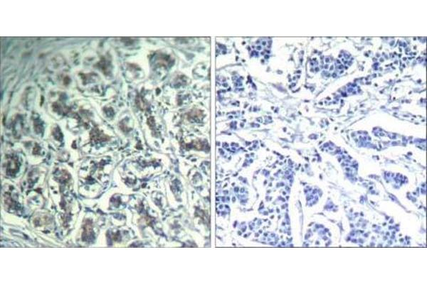 Immunohistochemical analysis of paraffin-embedded human breast carcinoma tissue using PLC-γ1 (Ab-771) Antibody (E021523).
