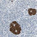 anti-UCHL1 Antikörper (Ubiquitin Carboxyl-terminal Esterase L1 (Ubiquitin Thiolesterase))