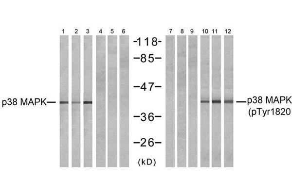 Western blot analysis of extracts from NIH-3T3 (Line 1, 4, 7 and 10) and COS7 (Line 2, 5, 8 and 11 and K562 (Line 3, 6, 9 and 12) cells, untreated or treated with