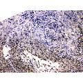 anti-HDGF anticorps (Hepatoma-Derived Growth Factor) (AA 61-97)