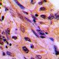 anti-CDC42EP4 antibody (CDC42 Effector Protein (Rho GTPase Binding) 4) (Center)