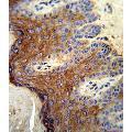 anti-ALOX12 antibody (Arachidonate 12-Lipoxygenase)