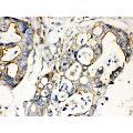 anti-Plectin (PLEC) (AA 2644-2671), (Middle Region) Antikörper