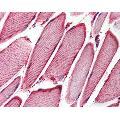 anti-Heat Shock Protein, alpha-Crystallin-Related, B6 (HSPB6) Antikörper
