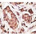 anti-UCHL1 Antikörper (Ubiquitin Carboxyl-terminal Esterase L1 (Ubiquitin Thiolesterase)) (AA 187-216)