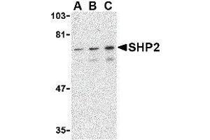 Image no. 1 for anti-Protein tyrosine Phosphatase, Non-Receptor Type 11 (PTPN11) (C-Term) antibody (ABIN2476469)