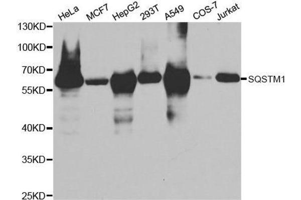Western blot analysis of extracts of various cell lines, using SQSTM1 antibody.