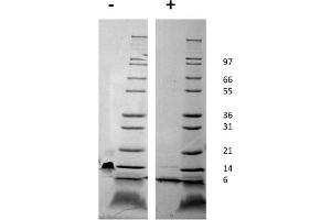 Image no. 1 for Chemokine (C-X-C Motif) Ligand 12 (CXCL12) protein (ABIN6699689)