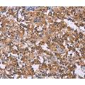 Immunohistochemistry of Human liver cancer using PIP5K1B Polyclonal Antibody at dilution of 1:30
