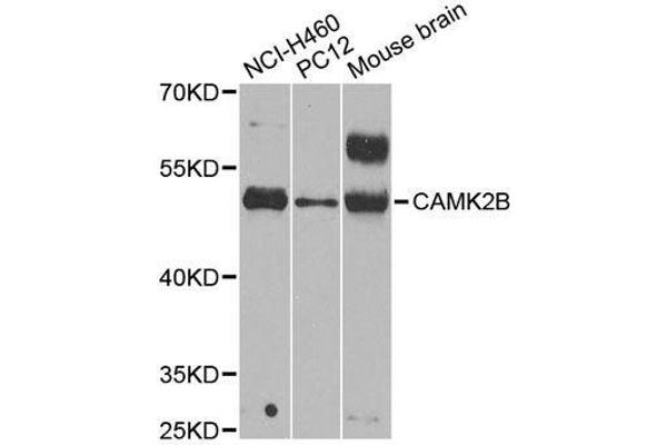 Western blot analysis of extracts of various cell lines, using CAMK2B antibody.