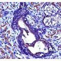anti-ACTG2 Antikörper (Actin, gamma 2, Smooth Muscle, Enteric) (AA 343-371)