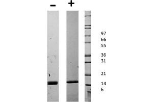 Image no. 2 for CD40 Ligand (CD40LG) protein (ABIN6699586)