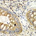 anti-PICK1 Antikörper (Protein Interacting With Protein Kinase C, alpha 1)