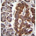anti-Dermatopontin antibody (DPT) (AA 52-80)