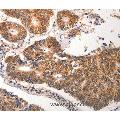 anti-CDC6 antibody (Cell Division Cycle 6 Homolog (S. Cerevisiae))
