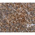 Immunohistochemistry of Human liver cancer using MAP3K11 Polyclonal Antibody at dilution of 1:40