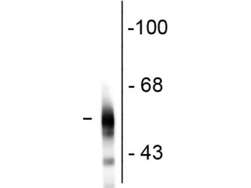 Image no. 2 for anti-Tubulin, Beta, 3 (TUBB3) antibody (ABIN6699201)