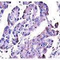 anti-AKT2 anticorps (V-Akt Murine Thymoma Viral Oncogene Homolog 2) (AA 93-123)