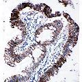 anti-EIF2S1 Antikörper (Eukaryotic Translation Initiation Factor 2 Subunit 1) (AA 123-137)