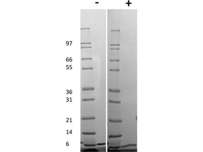 Image no. 2 for Chemokine (C-X-C Motif) Ligand 1 (Melanoma Growth Stimulating Activity, Alpha) (CXCL1) protein (ABIN6699666)