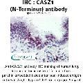 anti-Castor Zinc Finger 1 (CASZ1) (N-Term) Antikörper