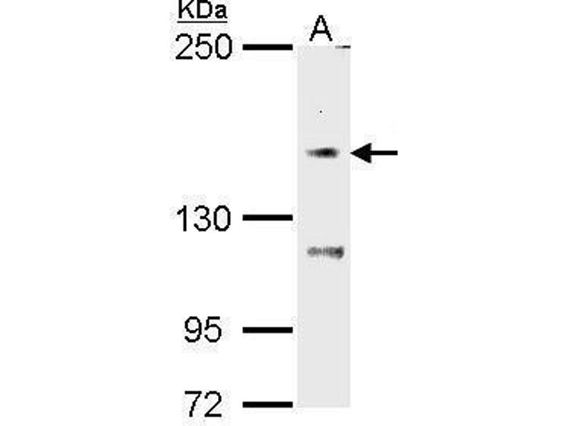 Image no. 2 for anti-Transient Receptor Potential Cation Channel, Subfamily M, Member 7 (TRPM7) (C-Term) antibody (ABIN2855925)