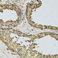 anti-Casein Kinase 2, beta (CSNK2B) Antikörper
