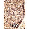 anti-Matrix Metallopeptidase 24 (Membrane-inserted) (MMP24) Antikörper