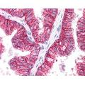 anti-ABCC4 antibody (ATP-Binding Cassette, Sub-Family C (CFTR/MRP), Member 4) (C-Term)