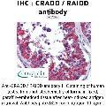 anti-CRADD Antikörper (CASP2 and RIPK1 Domain Containing Adaptor with Death Domain) (AA 112-126)