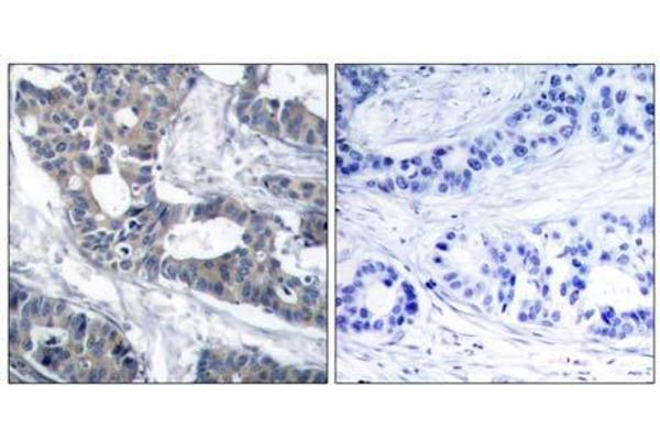 Immunohistochemical analysis of paraffin-embedded human breast carcinoma tissue using MEK1 (Ab-291) antibody (E021286).