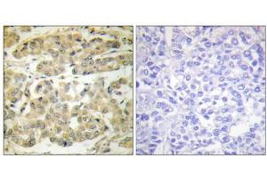 Immunohistochemical analysis of paraffin-embedded human breast carcinoma tissue, using 14-3-3 zeta (phospho-Ser58) antibody.