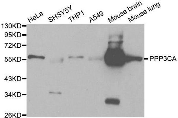 Western blot analysis of extracts of various cell lines, using PPP3CA antibody.