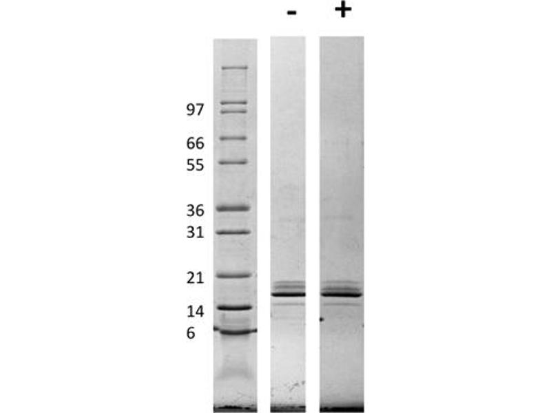 Image no. 1 for Chemokine (C-C Motif) Ligand 2 (CCL2) protein (ABIN6699614)