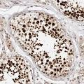 anti-CDCA2 antibody (Cell Division Cycle Associated 2)