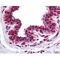 anti-BRD2 Antikörper (Bromodomain Containing 2) (AA 524-573)